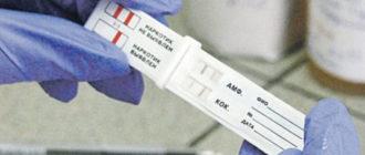 Методы определения наркотиков в моче